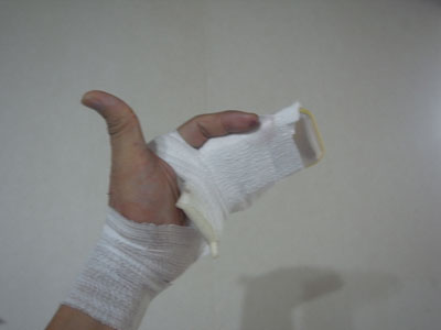 brokenfinger.jpg